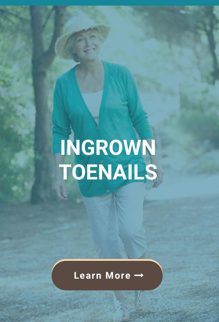 Ingrown Toenail Removal - Birmingham, AL Foot Doctors