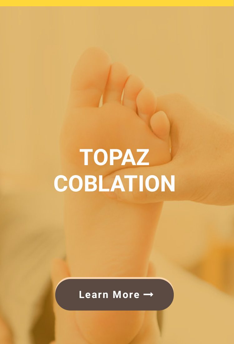 Topaz Coblation - Birmingham, AL Podiatrist