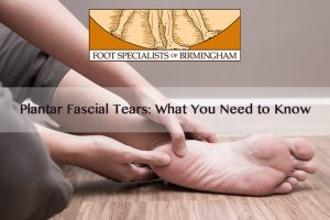 Plantar Fascial Tears: What You Need to Know